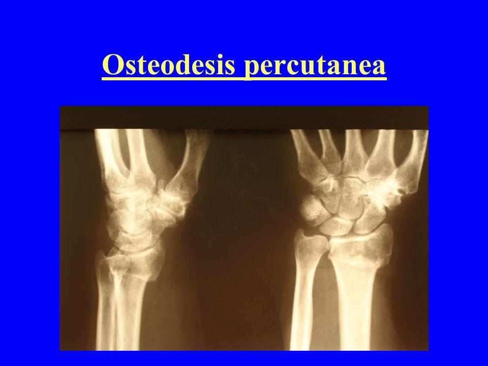 Osteodesis percutanea