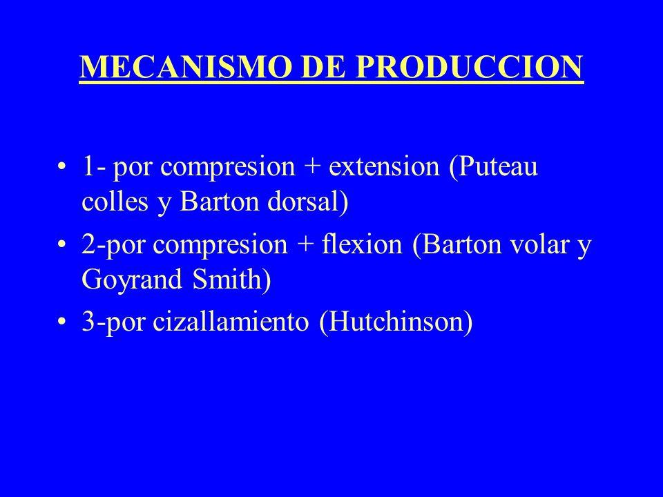 MECANISMO DE PRODUCCION 1- por compresion + extension (Puteau colles y Barton dorsal) 2-por compresion + flexion (Barton volar y Goyrand Smith) 3-por