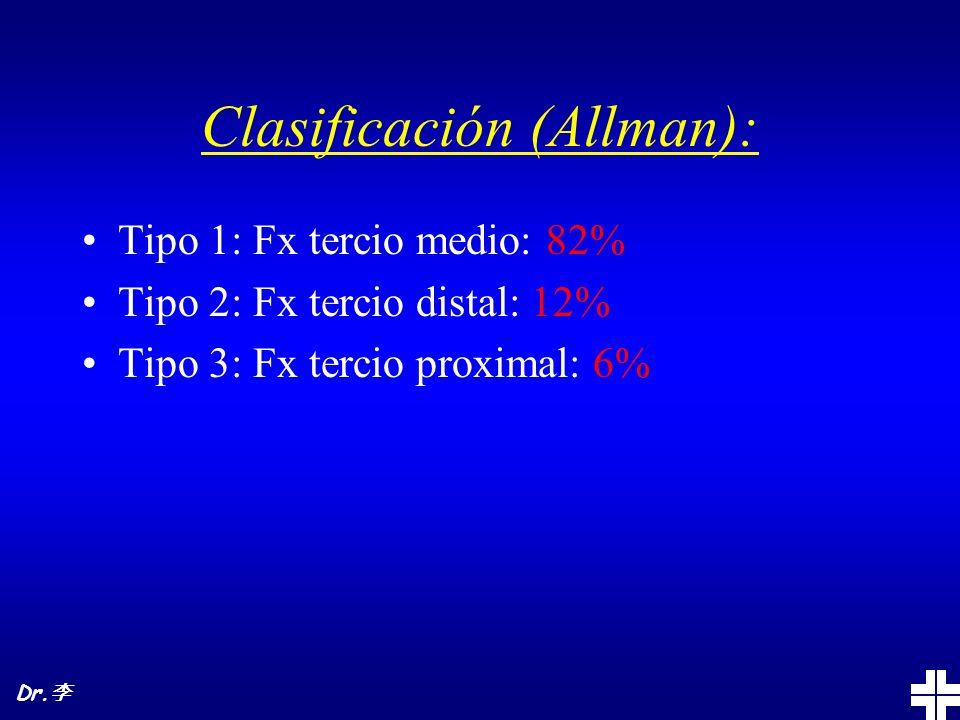 Clasificación (Allman): Tipo 1: Fx tercio medio: 82% Tipo 2: Fx tercio distal: 12% Tipo 3: Fx tercio proximal: 6% Dr.