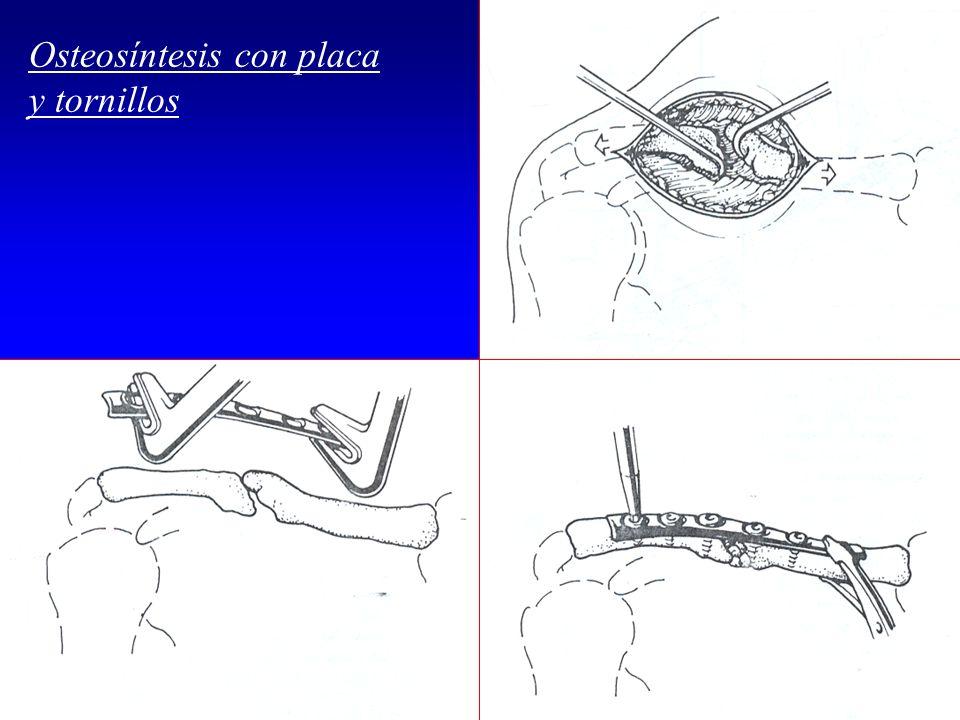 Osteosíntesis con placa y tornillos Dr.