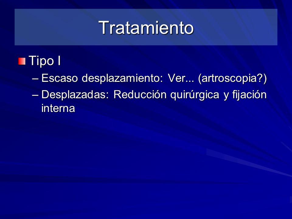 Tratamiento Tipo I –Escaso desplazamiento: Ver... (artroscopia?) –Desplazadas: Reducción quirúrgica y fijación interna