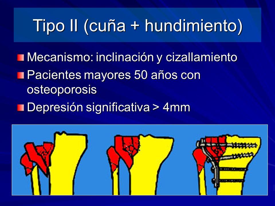Mecanismo: inclinación y cizallamiento Pacientes mayores 50 años con osteoporosis Depresión significativa > 4mm Tipo II (cuña + hundimiento)