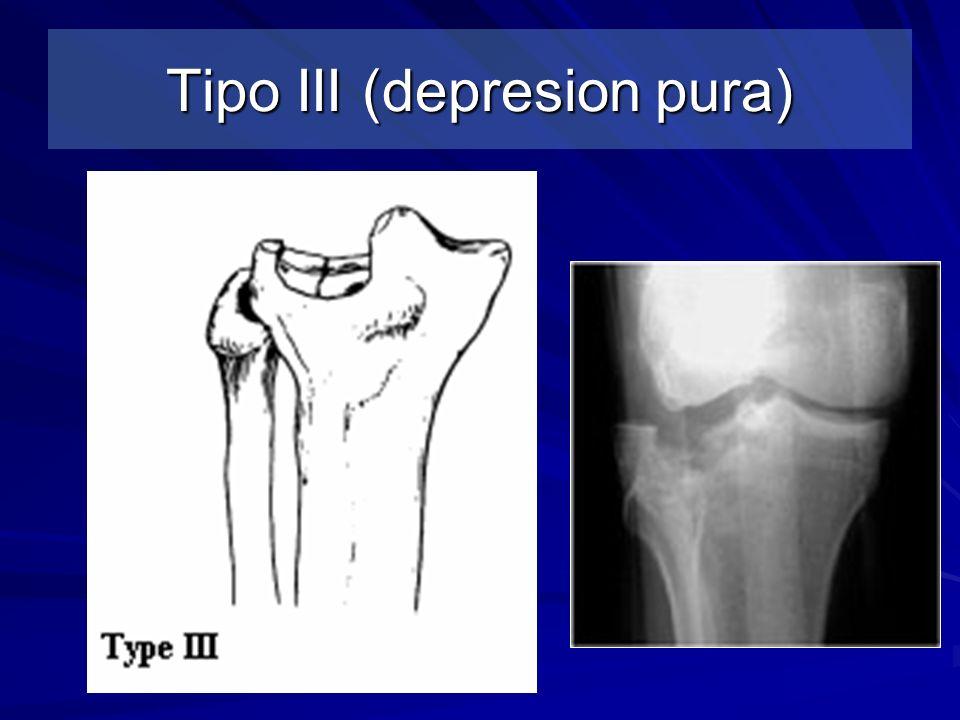 Tipo III (depresion pura)