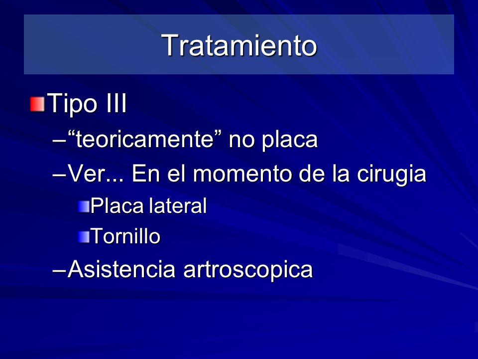 Tratamiento Tipo III –teoricamente no placa –Ver... En el momento de la cirugia Placa lateral Tornillo –Asistencia artroscopica