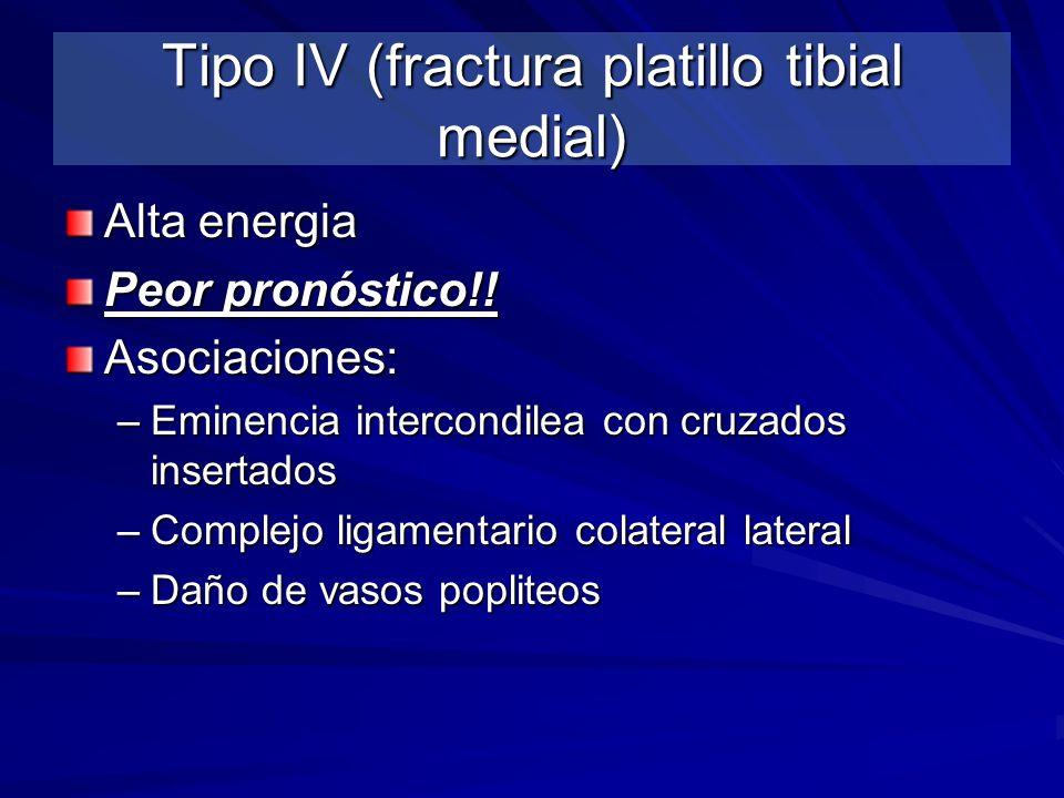 Alta energia Peor pronóstico!! Asociaciones: –Eminencia intercondilea con cruzados insertados –Complejo ligamentario colateral lateral –Daño de vasos