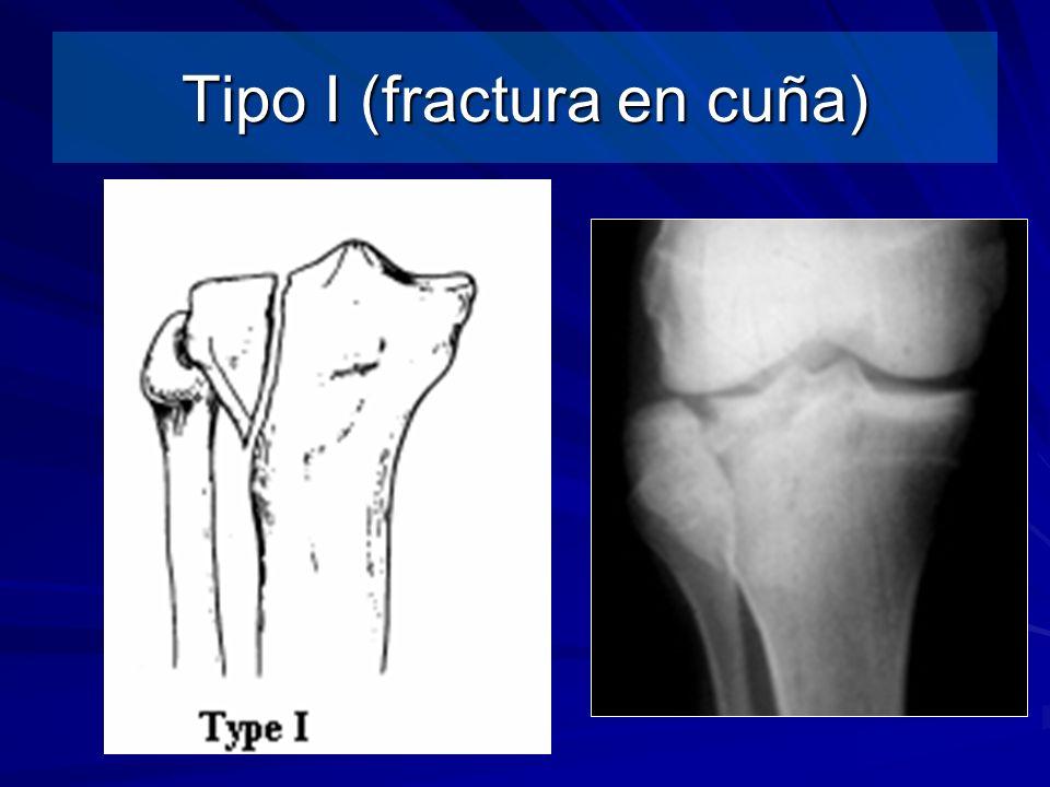 Tipo I (fractura en cuña)