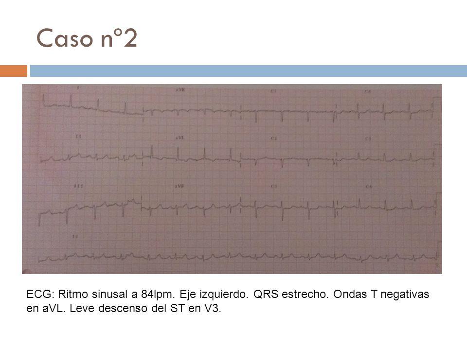ECG: Ritmo sinusal a 84lpm. Eje izquierdo. QRS estrecho. Ondas T negativas en aVL. Leve descenso del ST en V3.