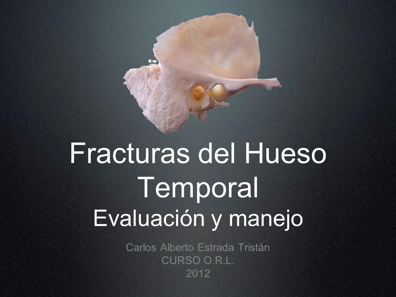 Fracturas del Hueso Temporal Evaluación y manejo Carlos Alberto Estrada Tristán CURSO O.R.L. 2012