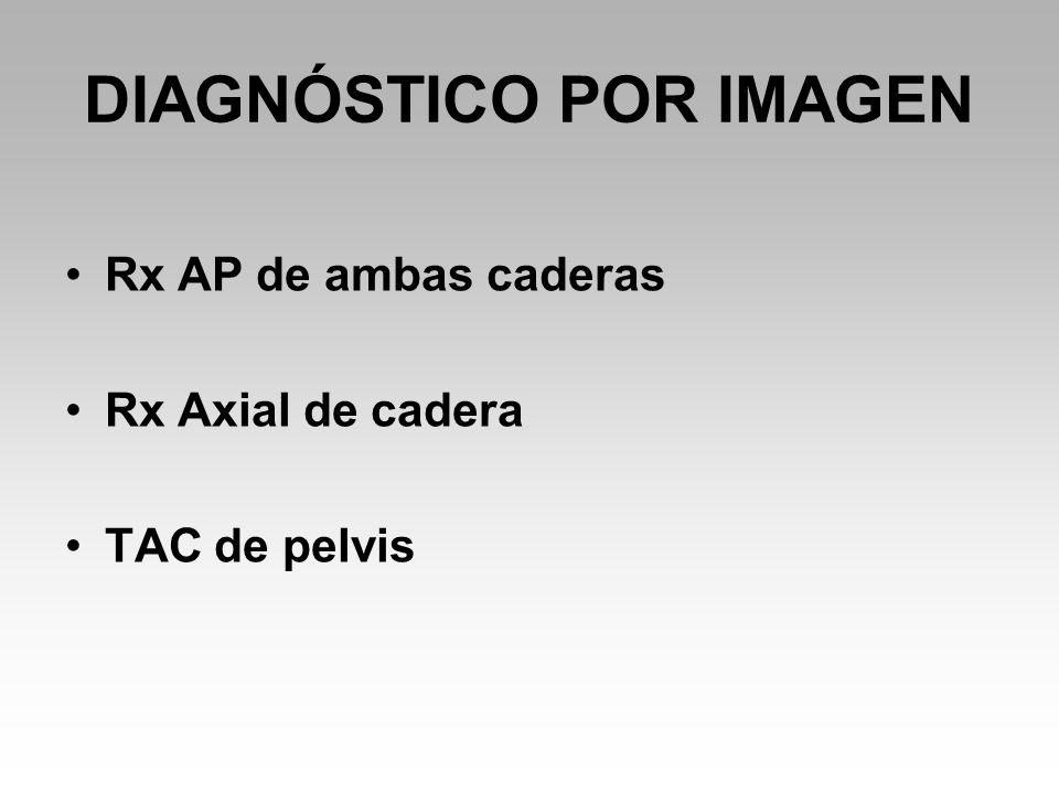 DIAGNÓSTICO POR IMAGEN Rx AP de ambas caderas Rx Axial de cadera TAC de pelvis