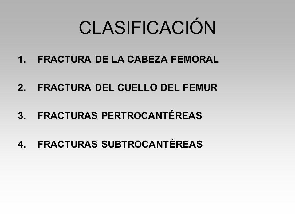 CLASIFICACIÓN 1.FRACTURA DE LA CABEZA FEMORAL 2.FRACTURA DEL CUELLO DEL FEMUR 3.FRACTURAS PERTROCANTÉREAS 4.FRACTURAS SUBTROCANTÉREAS