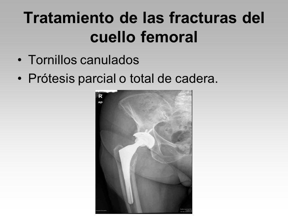 Tratamiento de las fracturas del cuello femoral Tornillos canulados Prótesis parcial o total de cadera.