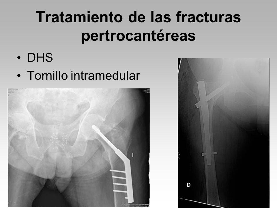 Tratamiento de las fracturas pertrocantéreas DHS Tornillo intramedular