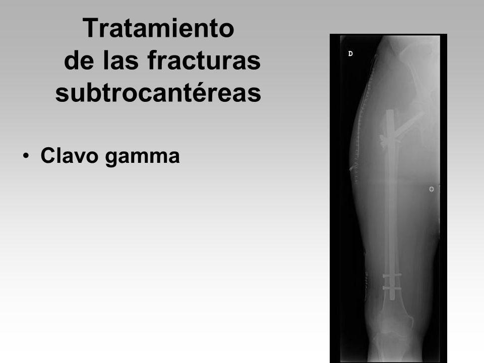 Tratamiento de las fracturas subtrocantéreas Clavo gamma