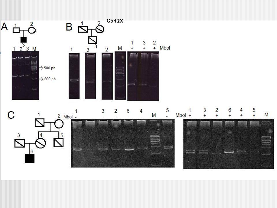 M 100pb Gel 12% de productos de PCR digeridos con MboI Alelo N 201 pb Alelo M 215 pb
