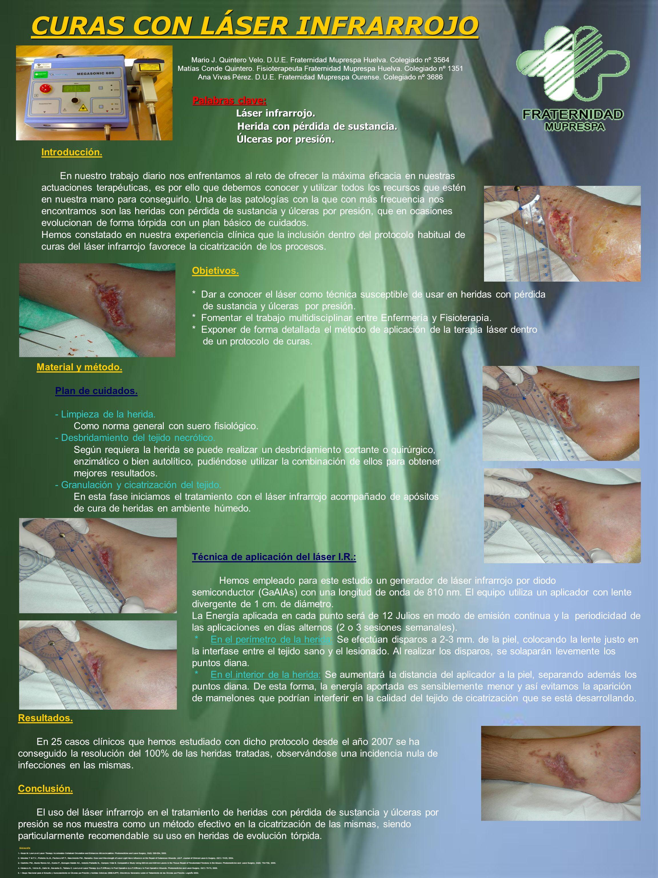 CURAS CON LÁSER INFRARROJO Palabras clave: Láser infrarrojo. Herida con pérdida de sustancia. Herida con pérdida de sustancia. Úlceras por presión. Úl
