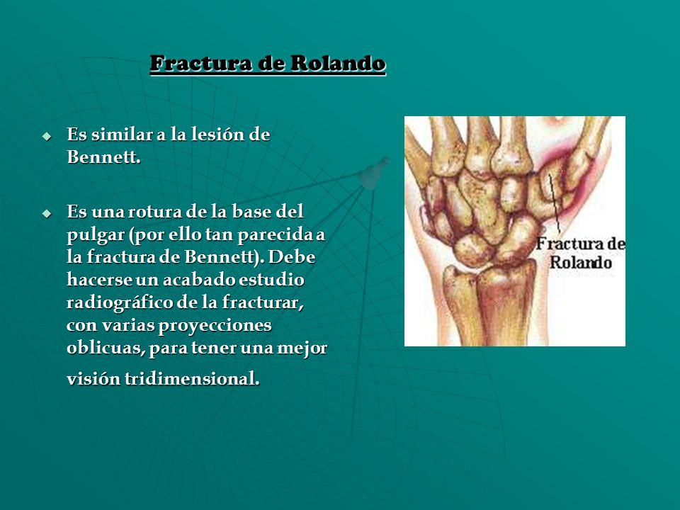 Fractura de Rolando Es similar a la lesión de Bennett. Es similar a la lesión de Bennett. Es una rotura de la base del pulgar (por ello tan parecida a