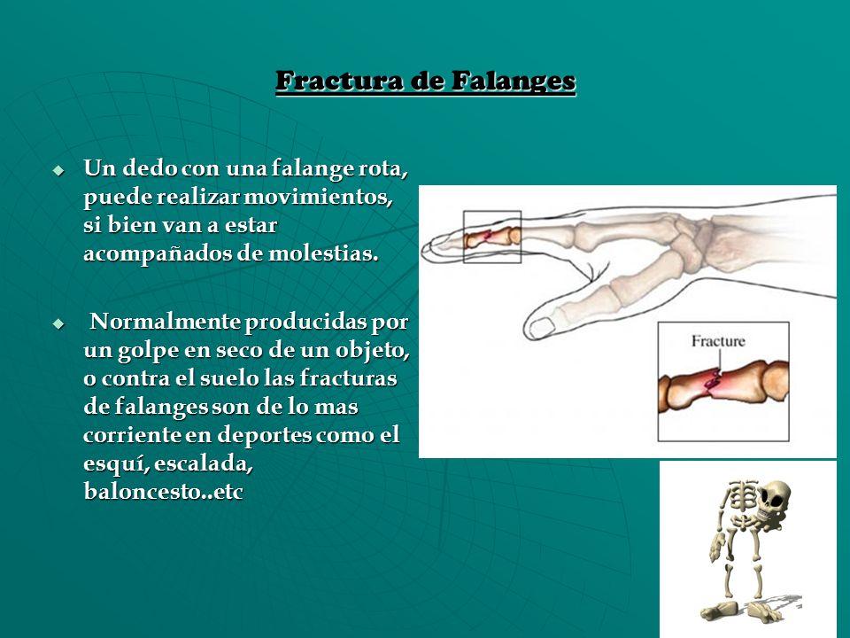 Fractura de Falanges Un dedo con una falange rota, puede realizar movimientos, si bien van a estar acompañados de molestias. Un dedo con una falange r