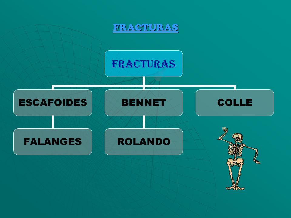 FRACTURAS FRACTURAS ESCAFOIDES FALANGES BENNET ROLANDO COLLE