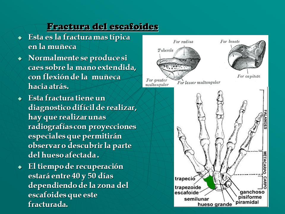 Fractura del escafoides Esta es la fractura mas típica en la muñeca Esta es la fractura mas típica en la muñeca Normalmente se produce si caes sobre l