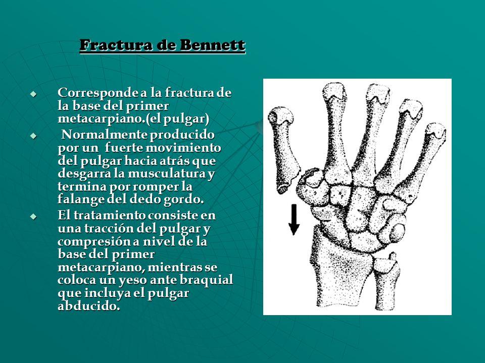 Fractura de Bennett Corresponde a la fractura de la base del primer metacarpiano.(el pulgar) Corresponde a la fractura de la base del primer metacarpi