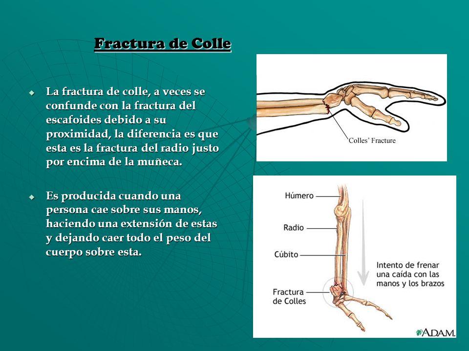 Fractura de Colle La fractura de colle, a veces se confunde con la fractura del escafoides debido a su proximidad, la diferencia es que esta es la fra