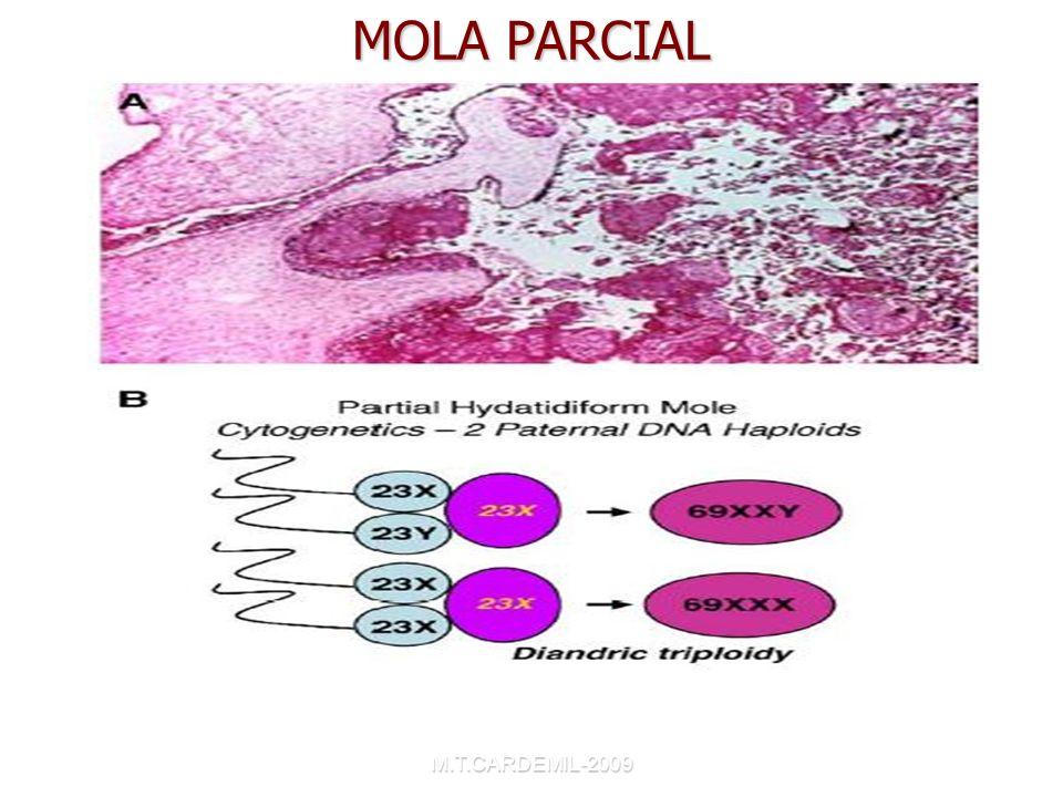 M.T.CARDEMIL-2009 MOLA PARCIAL Choriocarcinoma and Gestacional Trophoblastic Disease. Obstet Gynecol Clin N Am 32(2005)661-684