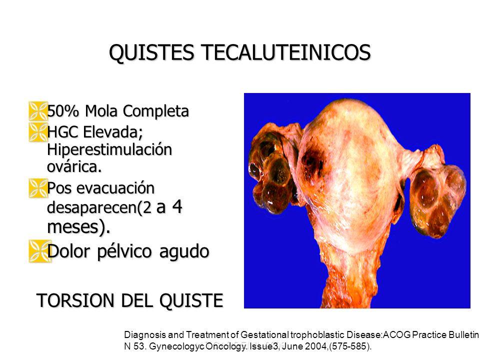 M.T.CARDEMIL-2009 QUISTES TECALUTEINICOS 50% Mola Completa 50% Mola Completa HGC Elevada; Hiperestimulación ovárica. HGC Elevada; Hiperestimulación ov