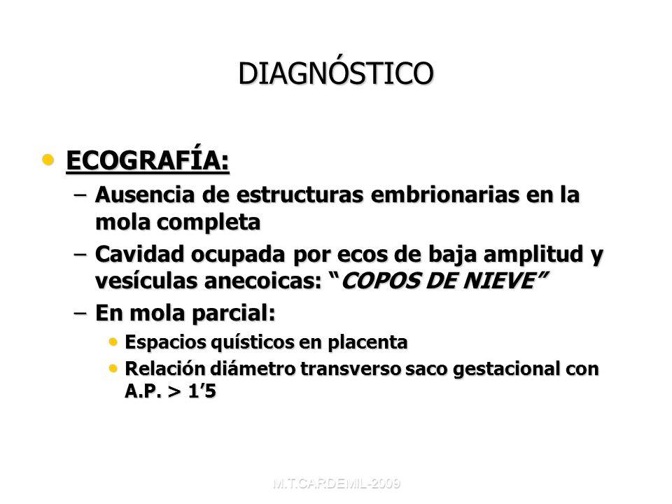 M.T.CARDEMIL-2009 DIAGNÓSTICO ECOGRAFÍA: ECOGRAFÍA: –Ausencia de estructuras embrionarias en la mola completa –Cavidad ocupada por ecos de baja amplit
