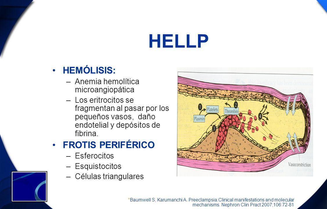HELLP HEMÓLISIS: –Anemia hemolítica microangiopática –Los eritrocitos se fragmentan al pasar por los pequeños vasos, daño endotelial y depósitos de fi