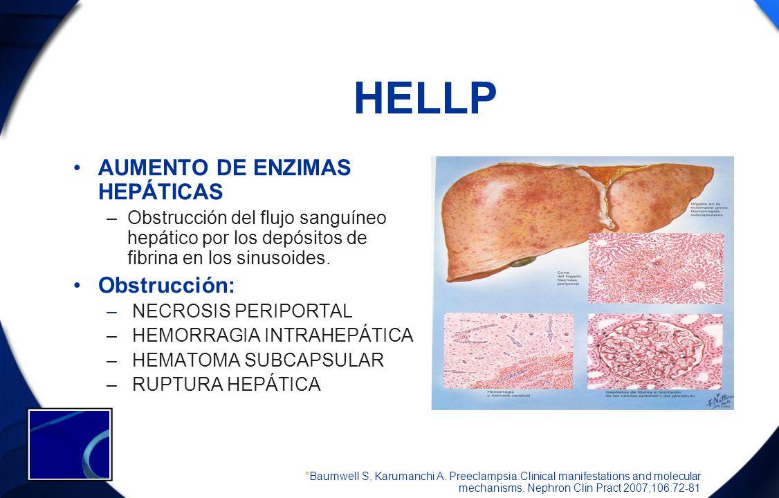 HELLP AUMENTO DE ENZIMAS HEPÁTICAS –Obstrucción del flujo sanguíneo hepático por los depósitos de fibrina en los sinusoides. Obstrucción: – NECROSIS P