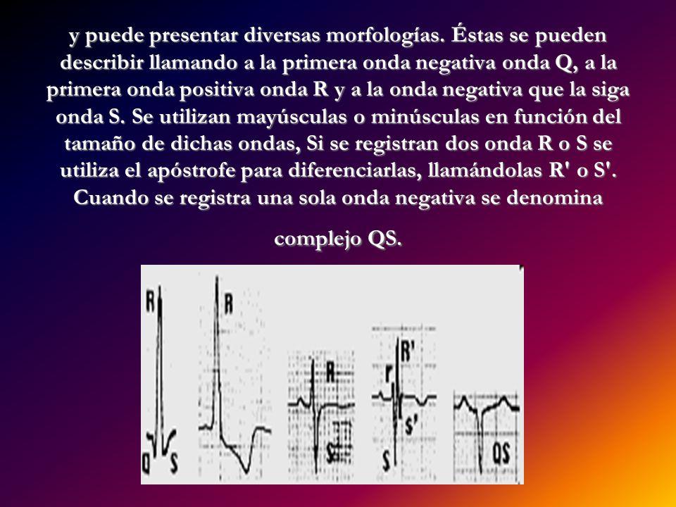 y puede presentar diversas morfologías. Éstas se pueden describir llamando a la primera onda negativa onda Q, a la primera onda positiva onda R y a la