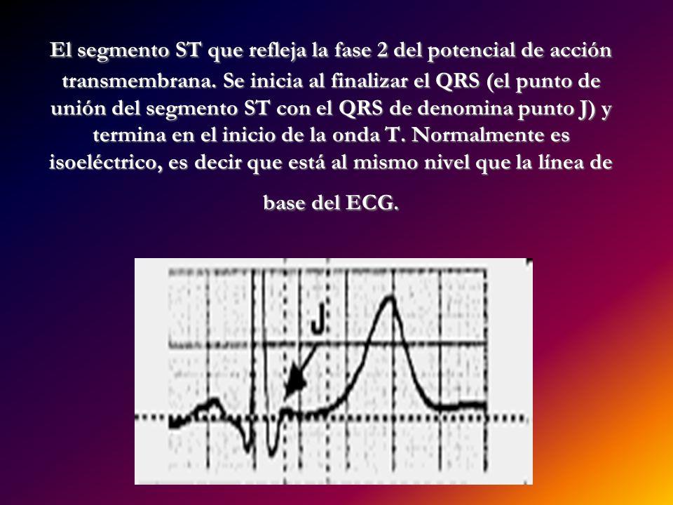 El segmento ST que refleja la fase 2 del potencial de acción transmembrana. Se inicia al finalizar el QRS (el punto de unión del segmento ST con el QR