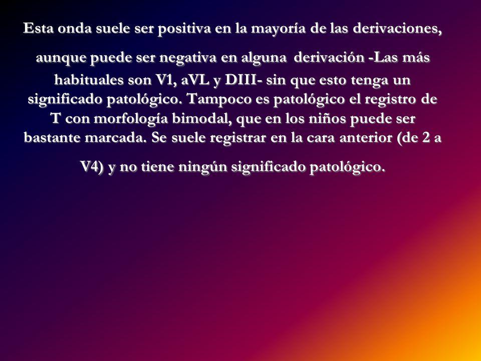Esta onda suele ser positiva en la mayoría de las derivaciones, aunque puede ser negativa en alguna derivación -Las más habituales son V1, aVL y DIII-