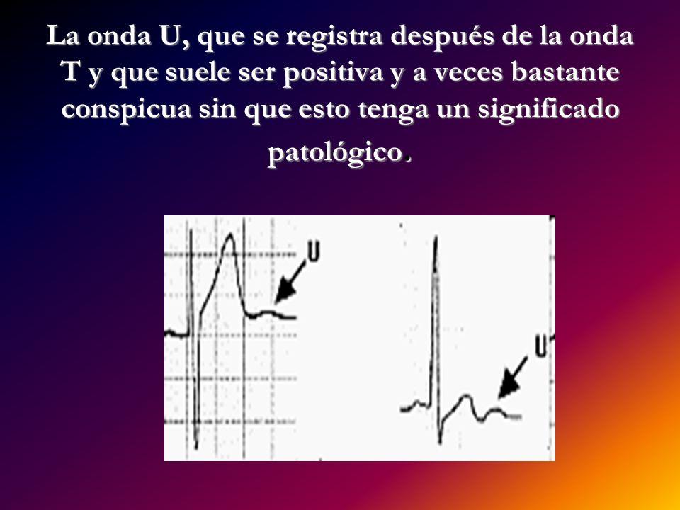 La onda U, que se registra después de la onda T y que suele ser positiva y a veces bastante conspicua sin que esto tenga un significado patológico.