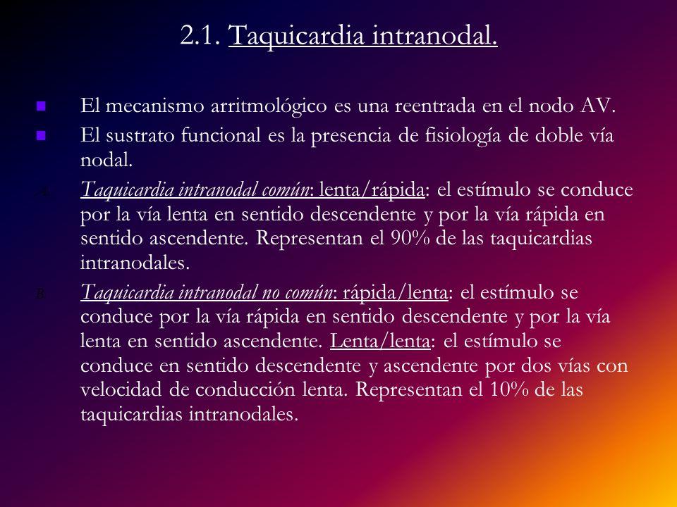 2.1. Taquicardia intranodal. El mecanismo arritmológico es una reentrada en el nodo AV. El sustrato funcional es la presencia de fisiología de doble v
