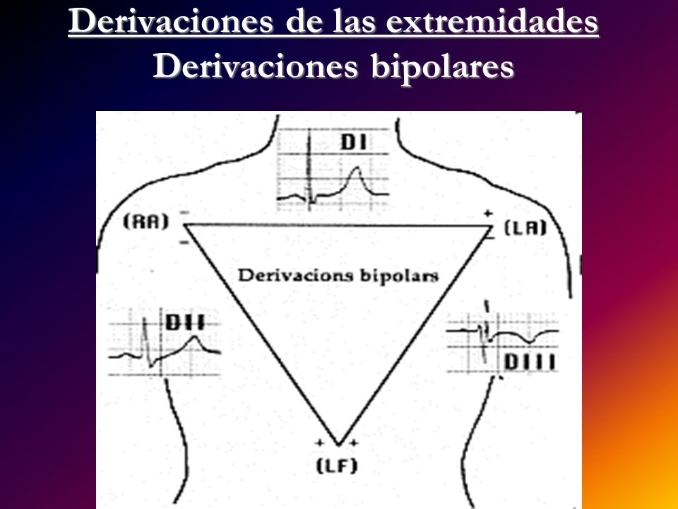 Derivaciones de las extremidades Derivaciones bipolares