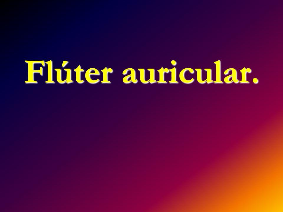 Flúter auricular.