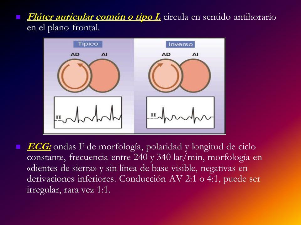 Flúter auricular común o tipo I. circula en sentido antihorario en el plano frontal. ECG: ondas F de morfología, polaridad y longitud de ciclo constan