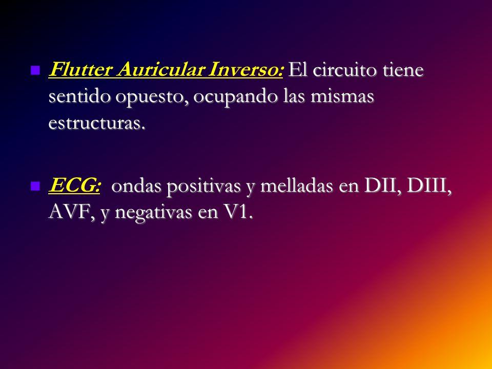 El circuito tiene sentido opuesto, ocupando las mismas estructuras. Flutter Auricular Inverso: El circuito tiene sentido opuesto, ocupando las mismas