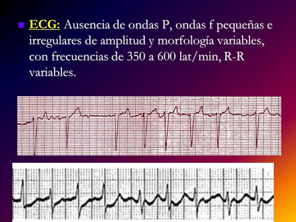 Ausencia de ondas P, ondas f pequeñas e irregulares de amplitud y morfología variables, con frecuencias de 350 a 600 lat/min, R-R variables. ECG: Ause