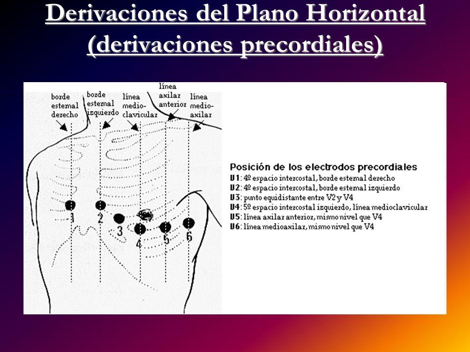 Derivaciones del Plano Horizontal (derivaciones precordiales)