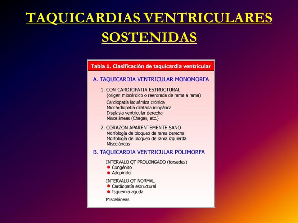TAQUICARDIAS VENTRICULARES SOSTENIDAS