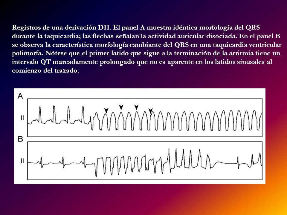 Registros de una derivación DII. El panel A muestra idéntica morfología del QRS durante la taquicardia; las flechas señalan la actividad auricular dis
