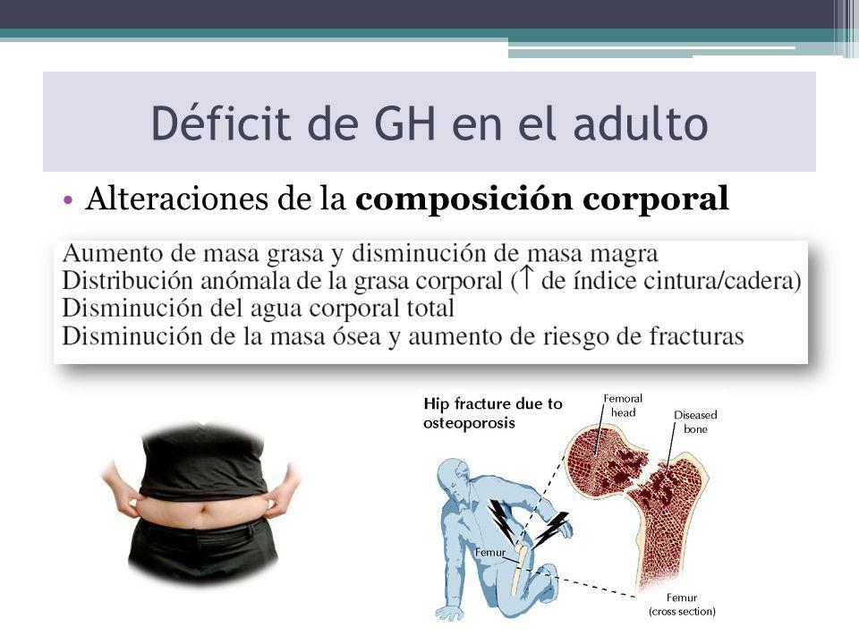 Déficit de GH en el adulto Alteraciones de la composición corporal