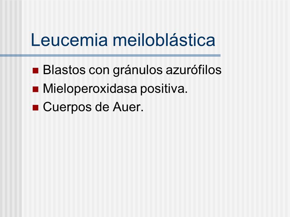 Leucemia meiloblástica Blastos con gránulos azurófilos Mieloperoxidasa positiva. Cuerpos de Auer.