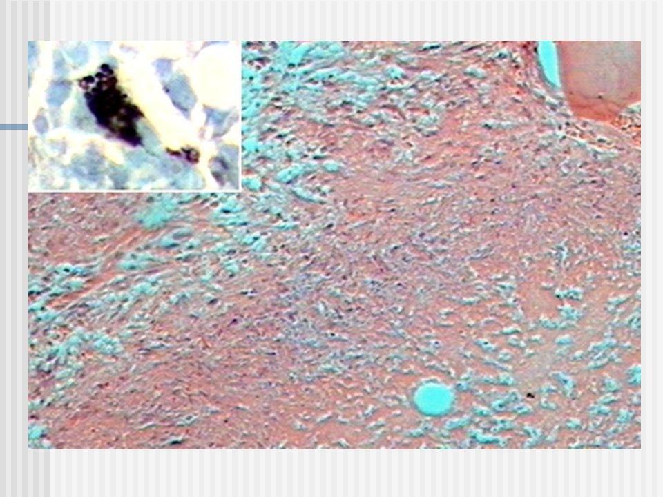 Leucemia linfoblastica lineaTdTCD19CD10SIgCD7CD3CD2 Frecuencia Pre-B muy precoses ++-----5-10% B precoces +++----50-60% Pre-B+++----20% Linea T+---+++15%