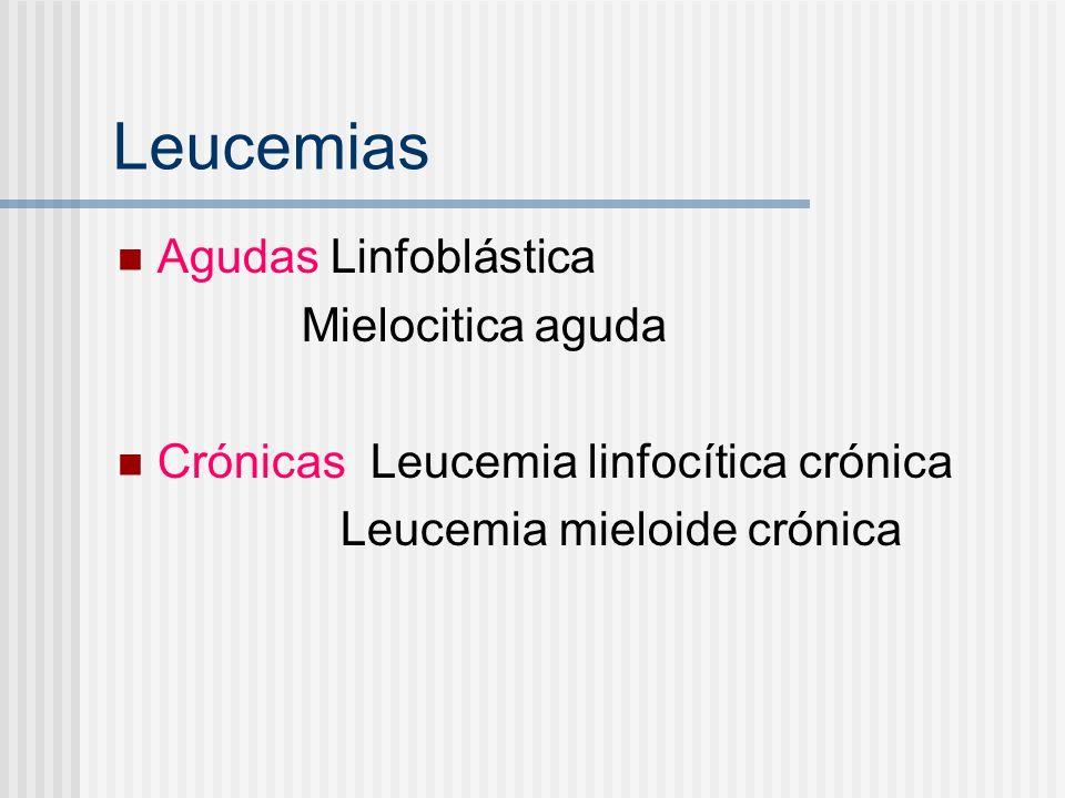 Leucemias agudas Blastos sustituyen la médula ósea normal Producen anemia, sangrado e infecciones Mortales a corto plazo sin tratamiento.