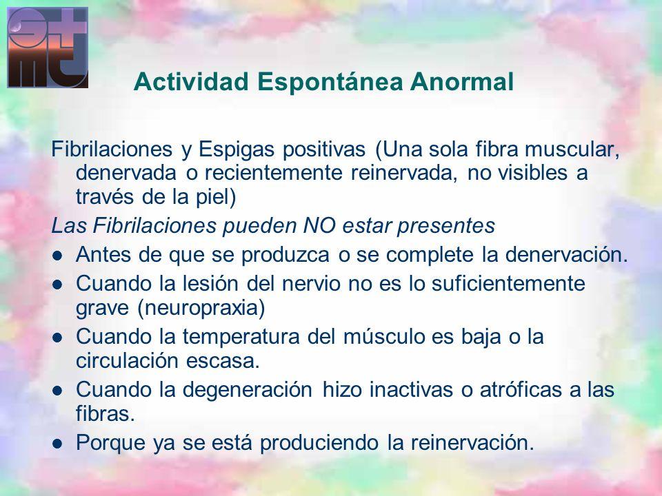 Actividad Espontánea Anormal Fibrilaciones y Espigas positivas (Una sola fibra muscular, denervada o recientemente reinervada, no visibles a través de