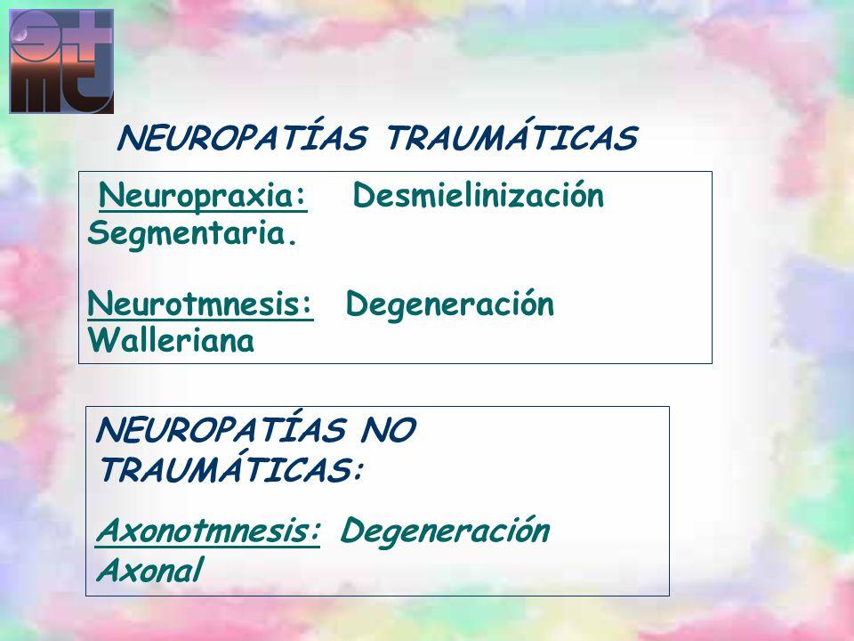 Neuropraxia: Desmielinización Segmentaria. Neurotmnesis: Degeneración Walleriana NEUROPATÍAS TRAUMÁTICAS NEUROPATÍAS NO TRAUMÁTICAS: Axonotmnesis: Deg
