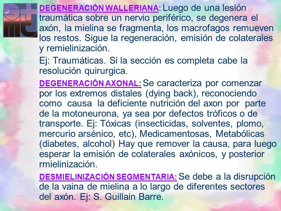 DEGENERACIÓN WALLERIANA: Luego de una lesión traumática sobre un nervio periférico, se degenera el axón, la mielina se fragmenta, los macrofagos remue